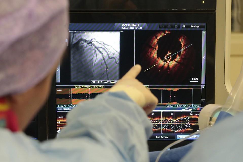 Veel rokers belanden op de operatietafel van de cardioloog.