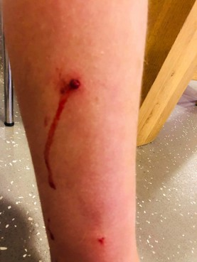 Jongen uit Waarland gewond na beschieting met luchtbuks